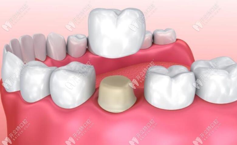 全瓷牙冠修复