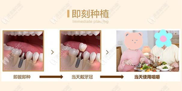 好佰年齿科即刻种植技术