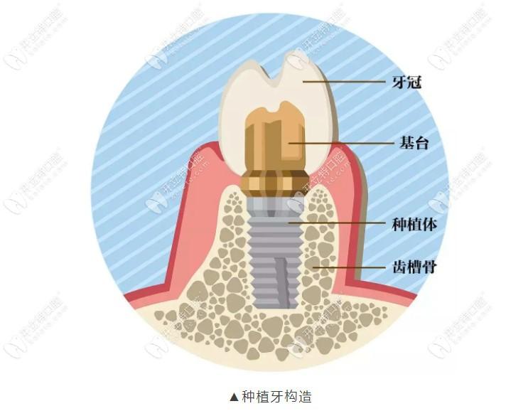 上海松江种植牙哪里好?排名不错的摩尔口腔种牙还不错哦