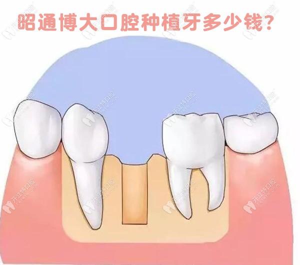 昭通博大口腔种植牙需要多少钱?快点安排种植牙价格表
